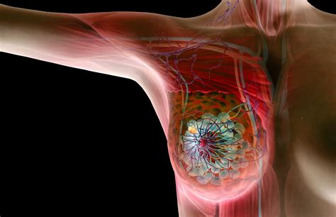 lump on s chest the basics on benign and cancerous breast lumps