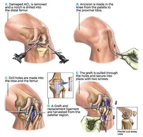 torn acl heal on its own anatomy of an injury acl anterior cruciate ligament tear