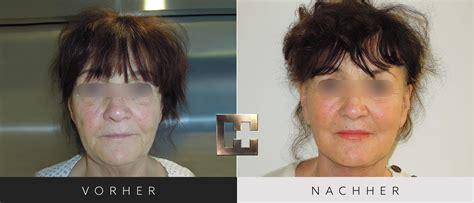 Facelift Vorher Nachher by Facelift Gesichtstraffung Facelifting Kosten Dr