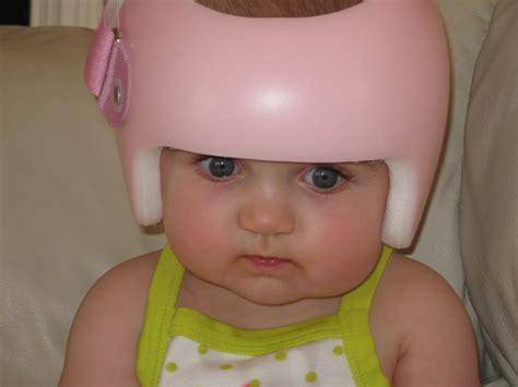 astro boy hair or helmet starband helmet plagiocephaly inspired pinterest