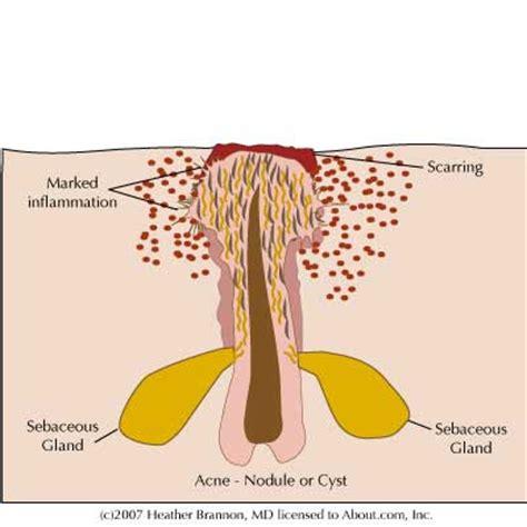 cystic acne diagram doctors gates cystic acne