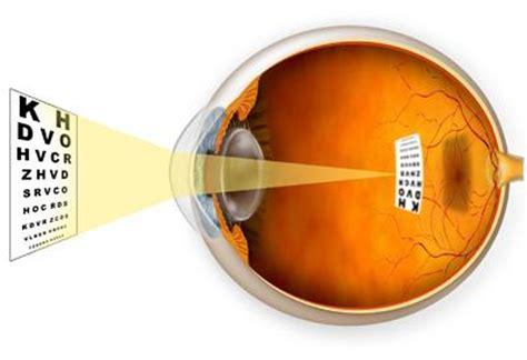 a guide to nearsightedness (myopia), farsightedness