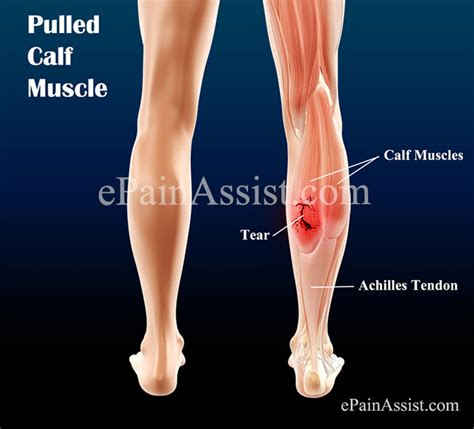 freehand calf muscle skin tear pulled calf muscle causes classification treatment