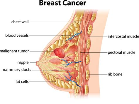 diagram of breast tissue start decreasing breast cancer risk ubc okanagan