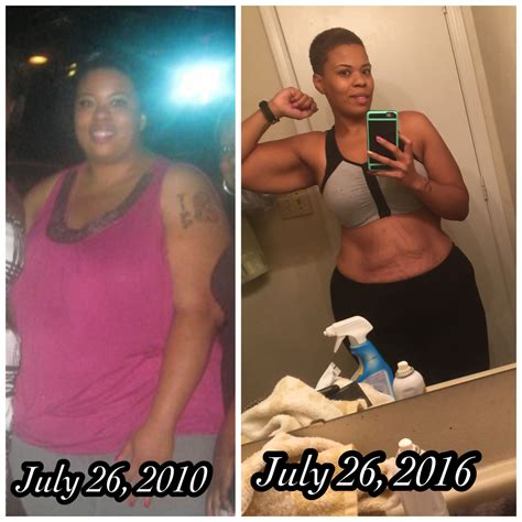 gastric bypass testimonials success stories with before gastric bypass success the weigh we were