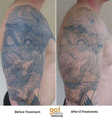 large tattoo removal 927 best removal in progress images on