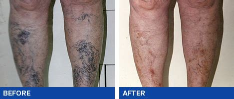 tattoo over varicose veins varicose veins before and after photos ashbury cosmetics