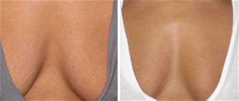 stretch marks luxe laser center