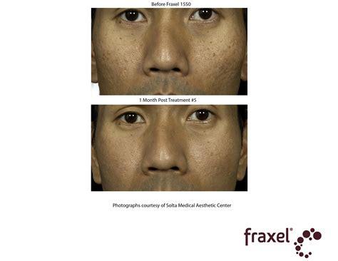 scar revision treatment westside laser amp light
