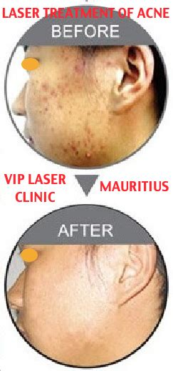 acne laser treatment the laser treatment clinic london vip laser clinic med spa mauritius what you should