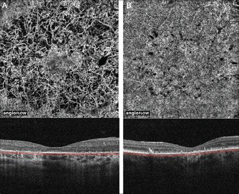 show pictures of pigment loss analysis of choroidal and retinal vasculature in inherited