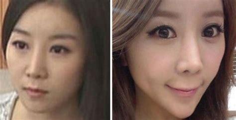 korean plastic surgery wrong seoul touchup korean