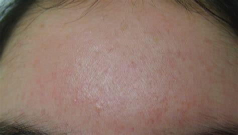 best acne scar looking for best acne scar treatment read this review