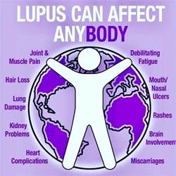 the 25 best lupus quotes ideas on epilepsy