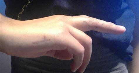 laser tattoo removal calgary laser removal calgary restobod laser clinics