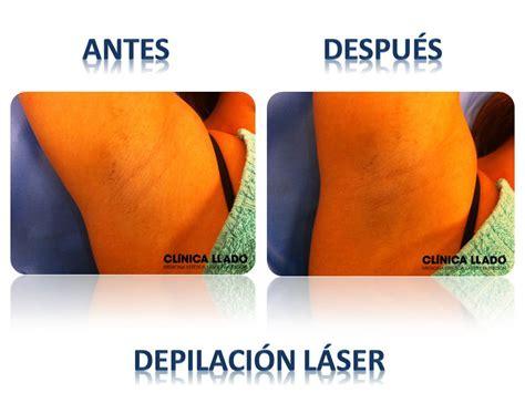 imagenes depilacion ingles brasileñas depilaci 243 n l 225 ser para mujeres clinica llado