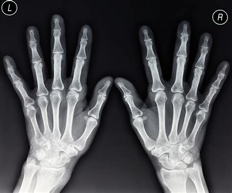 x ray the importance of radiopaque markers in digital x ray