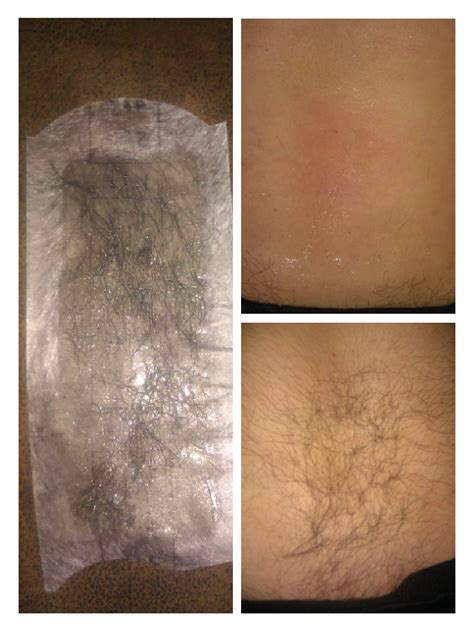 pubic hair before and after waxing pubic hair before and after waxing pubic hair before and
