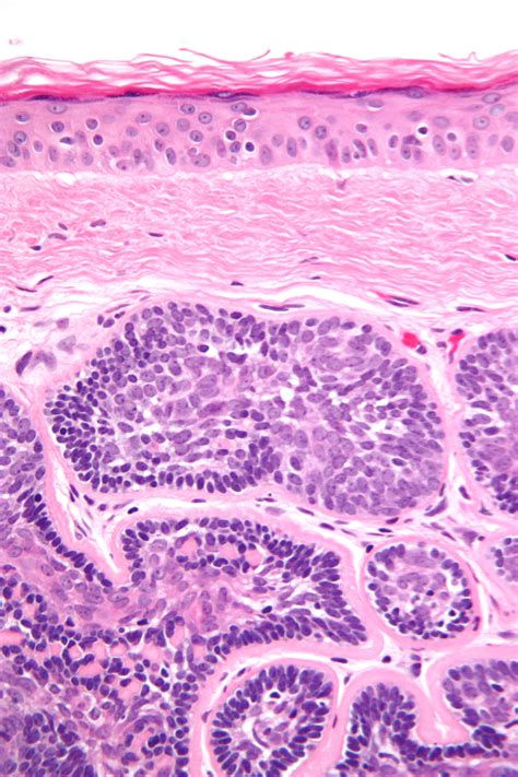 Skin Adnexal Tumors Pathology Outlines by Dermal Cylindroma