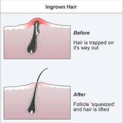 preventing ingrown hairs on neck after haircut best 25 infected ingrown hair ideas on pinterest sugar