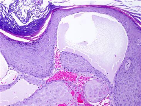 Lymphangioma Circumscriptum Pathology Outlines by Pathology Outlines Angiokeratoma