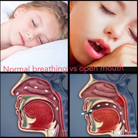 Does Your Kid Snore At by Sleep Apnea Snoring Treatment For Children Should You