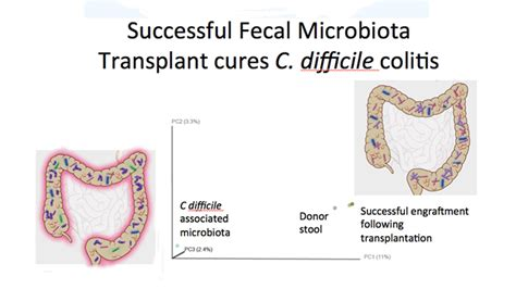 Stool Transplant C Diff by Intestinal Infection Treated With Fecal Transplant The