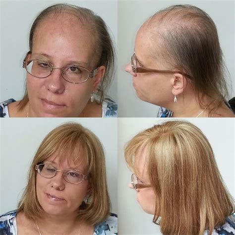 salons that specialize in womens thinning hair chicago best wigs for hair loss realistic lace front wig