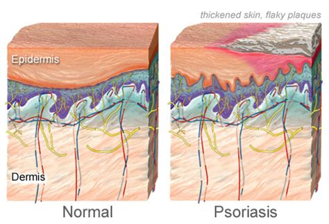pictures of plaque psoriasis, pustular psoriasis, and