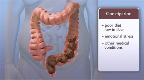 Changes In Stools And Bowel Movements by How Constipation Affects Your How To Naturally Cure It World Order