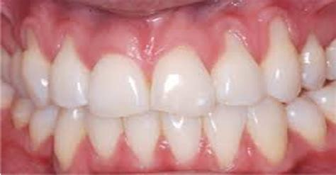 receding gums avoid tooth loss with these home remedies