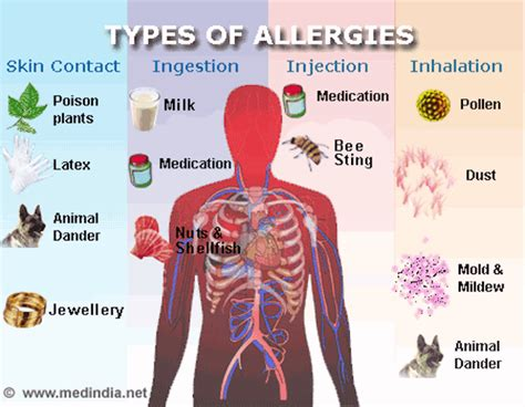 symptoms of allergies is it an allergy