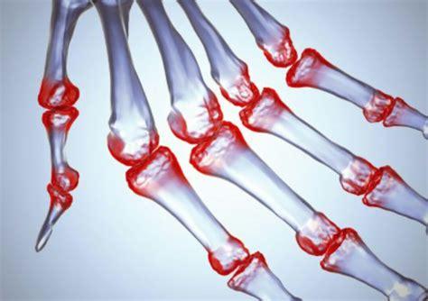 alimentazione e artrite reumatoide artrite reumatoide identificato un tipo di cellule t