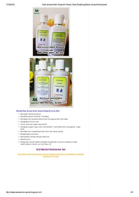 Sk Ii Penghilang Bekas Jerawat 0857 9992 3694 obat jerawat alami mujarab terbaik obat