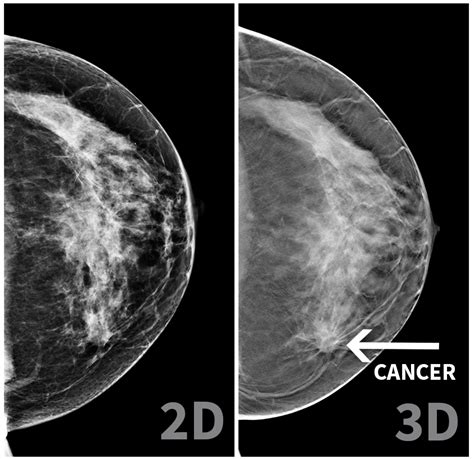 mammogram images mammogram images www pixshark images galleries