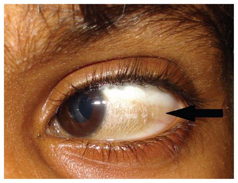 bitot spot early marker  avoidable blindness cmaj