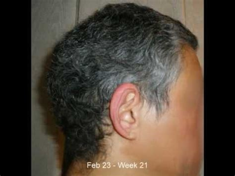 growing back afro american hair after chemo african american hair straight after chemo post chemo hair