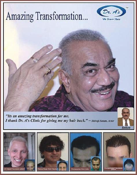 harsha bhogle hair transplant hair transplant mumbai hair transplant india new delhi