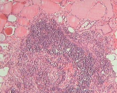 Ultimobranchial Pathology Outlines by Pathology Outlines Thymic Tissue Within Thyroid Gland