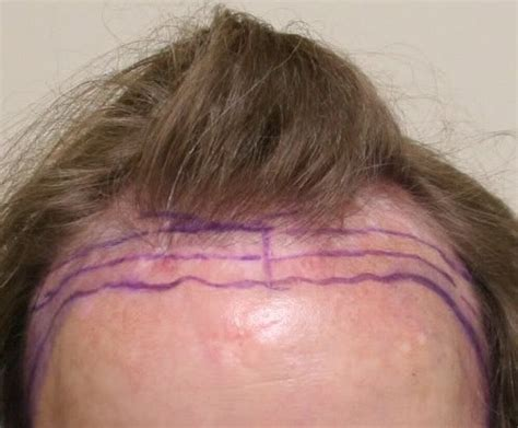 propecia or rogaine for frontal hair loss receding hairline hair restoration for transgender patients with hair loss