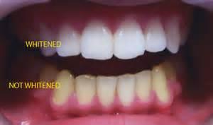 cosmetic dentistry parradental