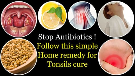 home remedies for antibiotics 28 images home remedies