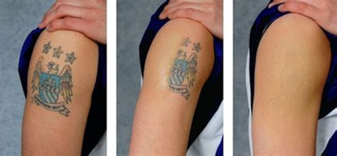 how can remove tattoo how effective is laser removal cost estimation