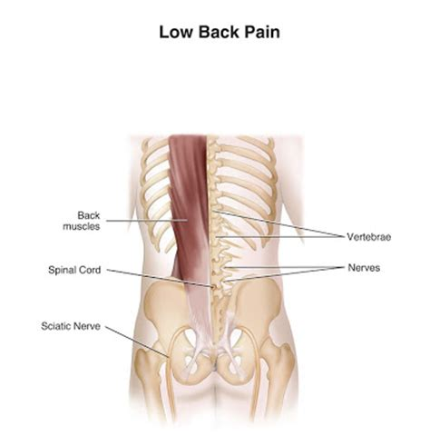 Is Backpain A Common Detox Symptom by Symptoms Of Lumbago Treatment Exercises For Low Back
