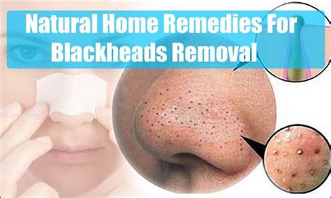 home remedies for blackheads on nose