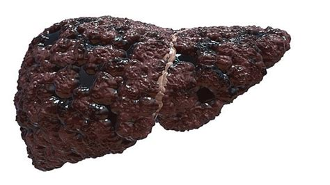 Pictures Of Liver