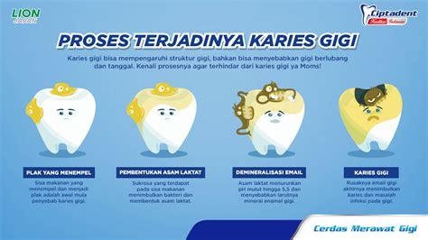 Proses Pemutihan Gigi proses terjadinya karies gigi ciptadent