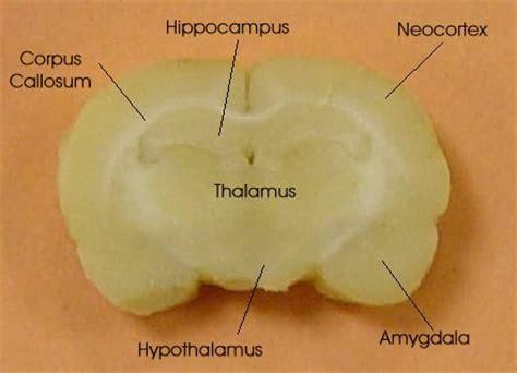 rat brain coronal sections views