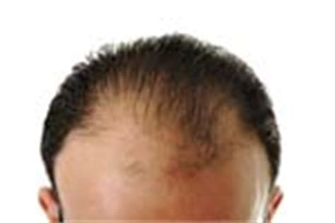Hair Disease Types by Types Of Hair Diseases Hair Scalp Problems Conditions