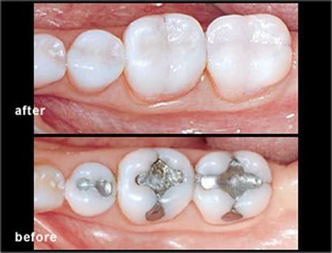 dental onlays mississauga dentist dentistry  dr